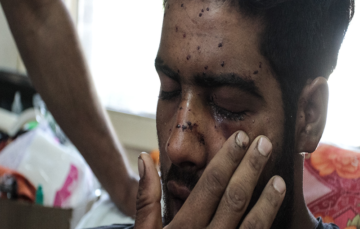 The doctors treating Kashmiris blinded by Pellets