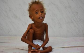 Yemen's malnourished children