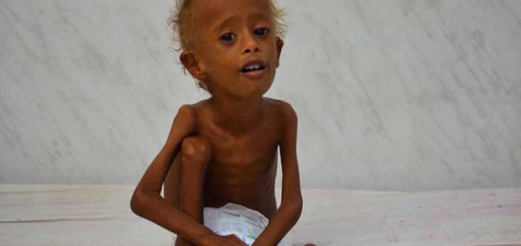 Yemen's malnourished children