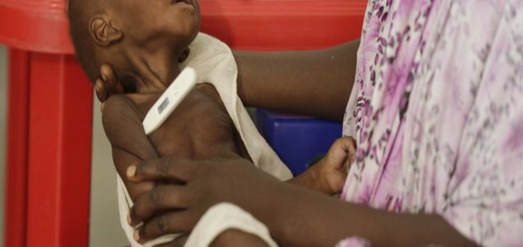 Why malnutrition is crippling Nigeria