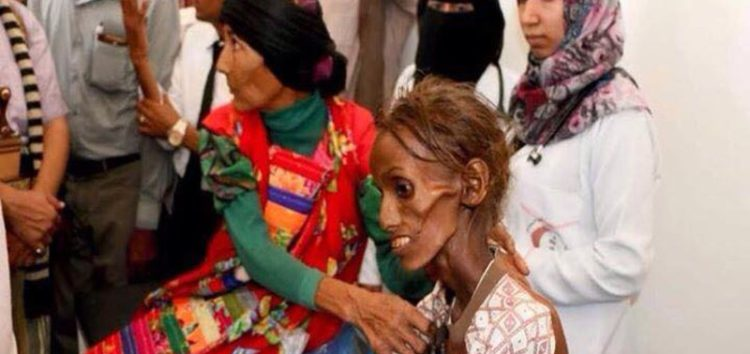 Yemen: UN needs $2.1 billion to prevent famine