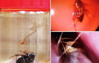 Doctors remove live cockroach from woman's skull in Chennai