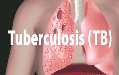 The Rise of Drug resistant Tuberculosis has taken a new horrifying turn