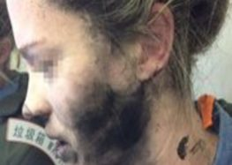 Woman's face burnt after headphones explode on flight to Australia