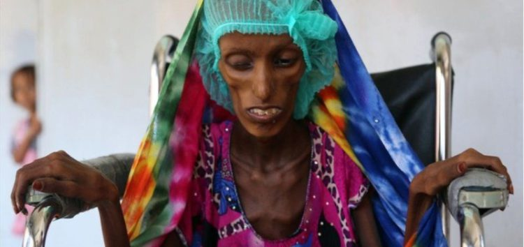 UN urges access to Yemen ports to allow food aid in