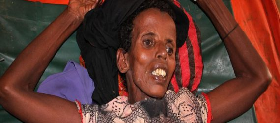 Concern mounts as starvation stalks Nigeria, Somalia, South Sudan and Yemen