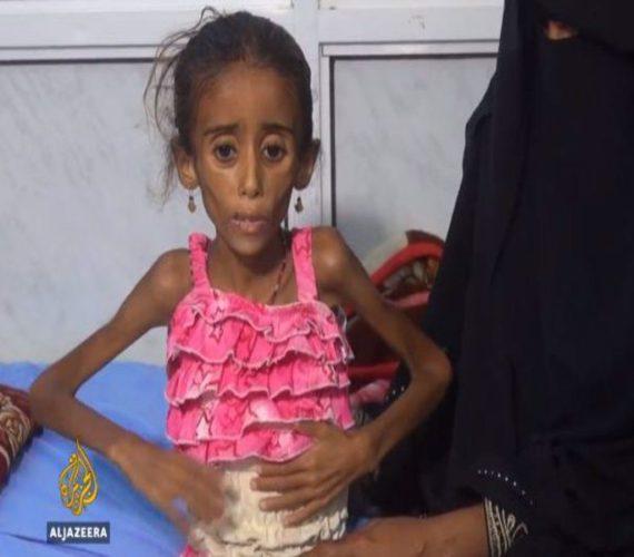 Millions of Yemenis starving in Ramadan