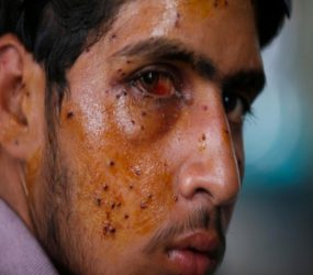 Amnesty: Ban shotguns maiming Kashmiris
