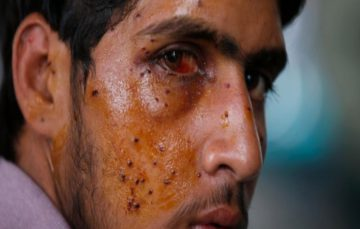 Amnesty: Ban shotguns maiming Kashmiris