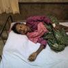 Inside the hospital treating burnt Rohingya refugees