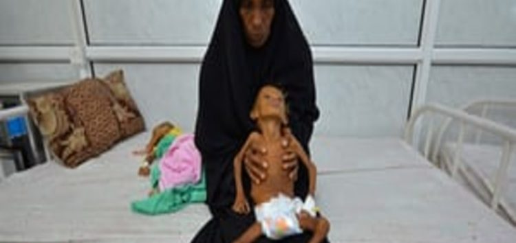 WFP: Food has now become a weapon of war in famine struck Yemen