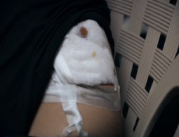 Syrians in Lebanon fall prey to illegal organ racketeers