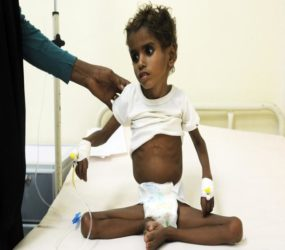 Yemen's war victims lament partially-lifted Saudi blocked