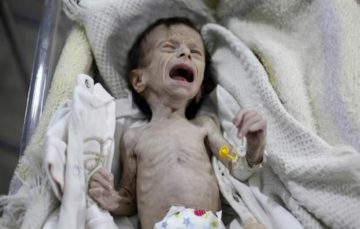 Child malnutrition hits 'all-time high' in East Ghouta, says UN
