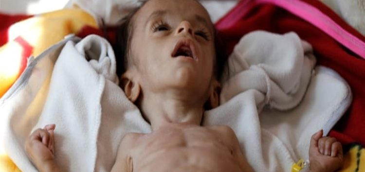 Saudis to ease Yemen siege but millions to still suffer as famine looms