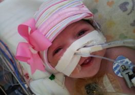 Baby born with heart outside her body survives lifesaving operation