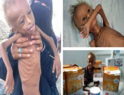 Yemeni children 'born into war' face the possibility of famine
