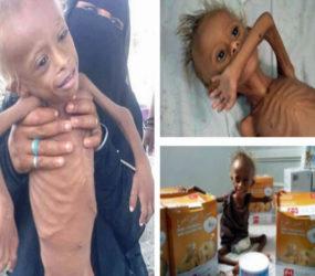 Yemeni children 'born into war' face the possibility of famine