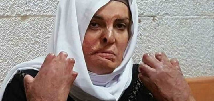 Disfigured Palestinian prisoner who requires urgent medical care loses bid for freedom