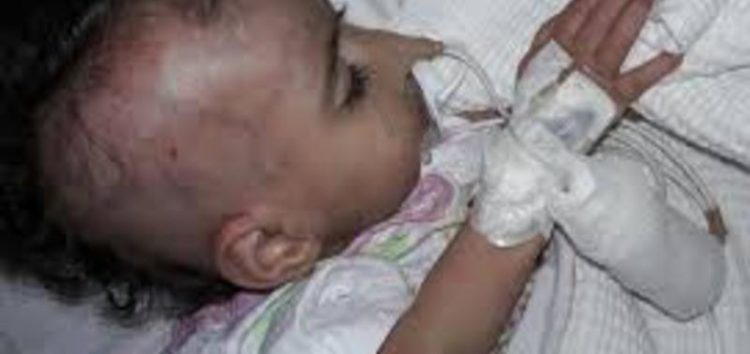 UK blocks Syrian family with dying child even though the infant requires urgent treatment