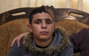 Palestinian teen still in high spirits despite being shot in the head and arrested by Israeli forces