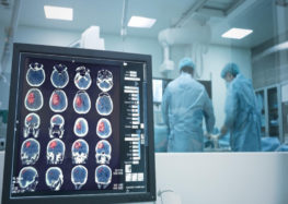 Doctors remove largest brain tumour in successful 7-hour surgery
