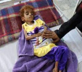 Save the children warns that a million more children face famine in Yemen