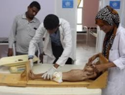UN Warns: Yemen could face the 'world's worst famine in 100 years' if fighting does not stop