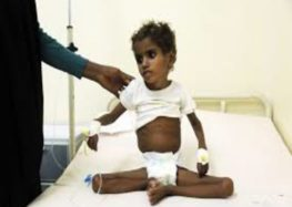 Battle for Hodeidah 'threatens lives' of 59 children in hospital