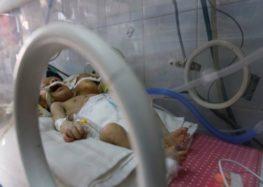 Yemeni conjoined twins die in Sanaa