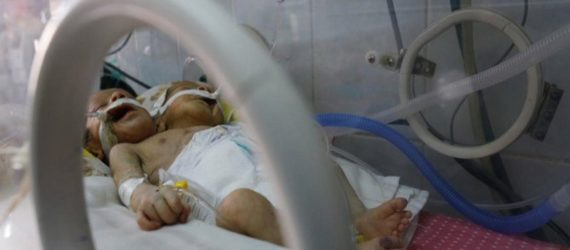Yemeni conjoined twins die in Sanaa