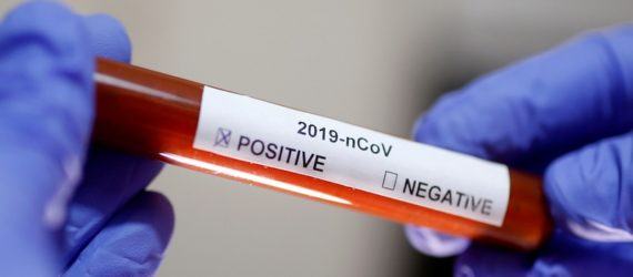 First coronavirus case confirmed in South Africa