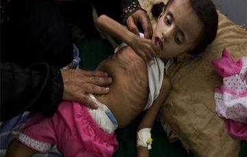 Yemen war: 'My children are starving to death'