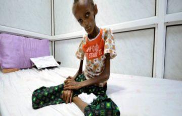 Yemen conflict affects half of health facilities