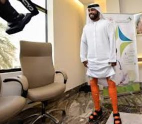 Emirati man first to receive 3D printed prosthetics