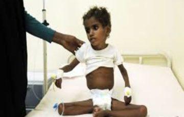 Battle for Hodeidah 'threatens lives' of 59 children in hospital